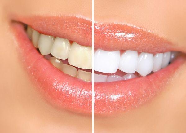5 опасных для зубной эмали продуктов