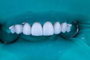 Лечение зубов с коффердамом
