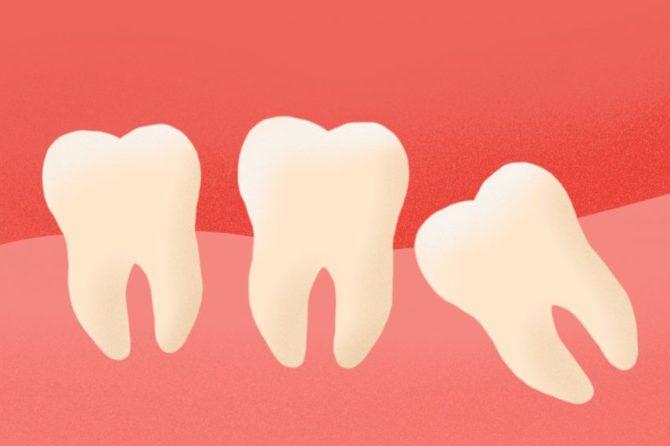 Удаление зуба мудрости: стоит ли это делать и по каким причинам?