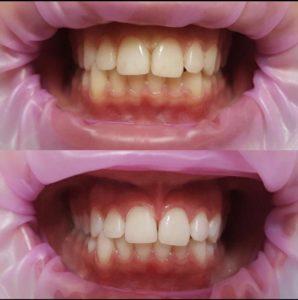 Отбеливание в стоматологии