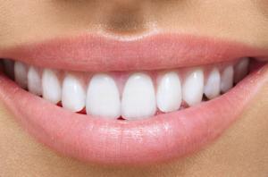 Керамические коронки на зубах