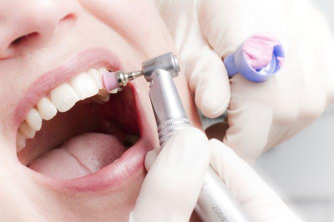 Профессиональная гигиена полости рта: десять причин, почему нужно проходить регулярную чистку