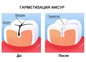 Герметизация фиссур: для чего нужна эта процедура и как она проводится