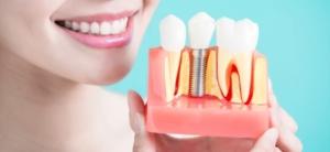Поставить имплант зуба Киев