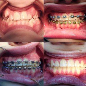 Работа ортодонта White Clinic. Брекеты
