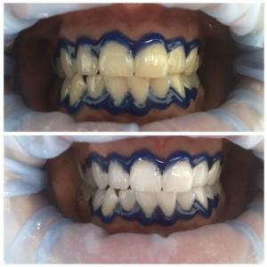 Лазерное отбеливание зубов. Фото результата
