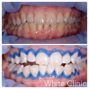Результат лазерного отбеливания зубов в стоматологии