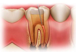 Лечение гранулемы и кисты зуба