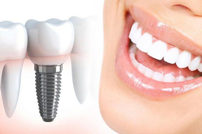6 частих питань лікарю стоматологу-імплантологу